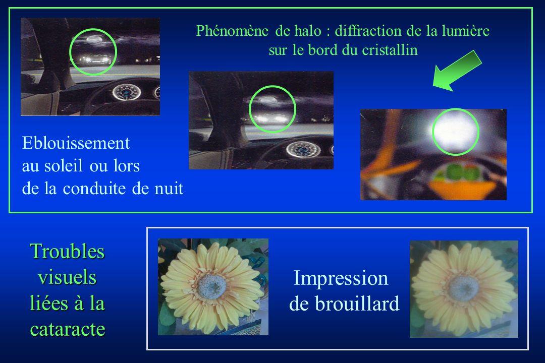 Troubles visuels liées à la cataracte Impression de brouillard