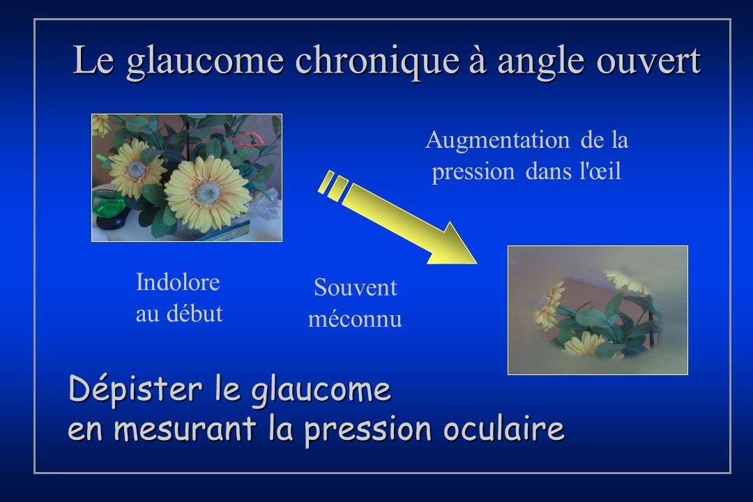 Le glaucome chronique à angle ouvert
