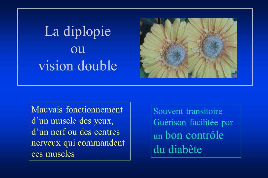 La diplopie ou vision double