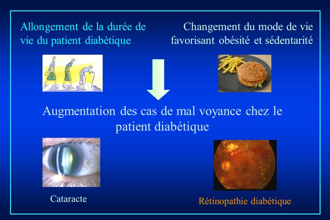 Augmentation des cas de mal voyance chez le patient diabétique
