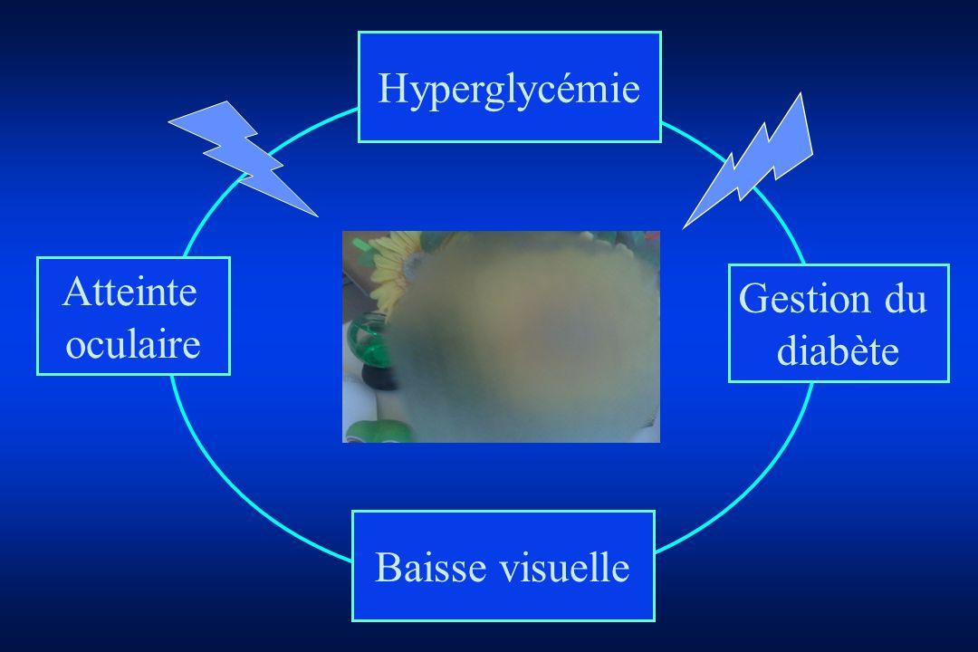 Hyperglycémie Atteinte oculaire Gestion du diabète Baisse visuelle