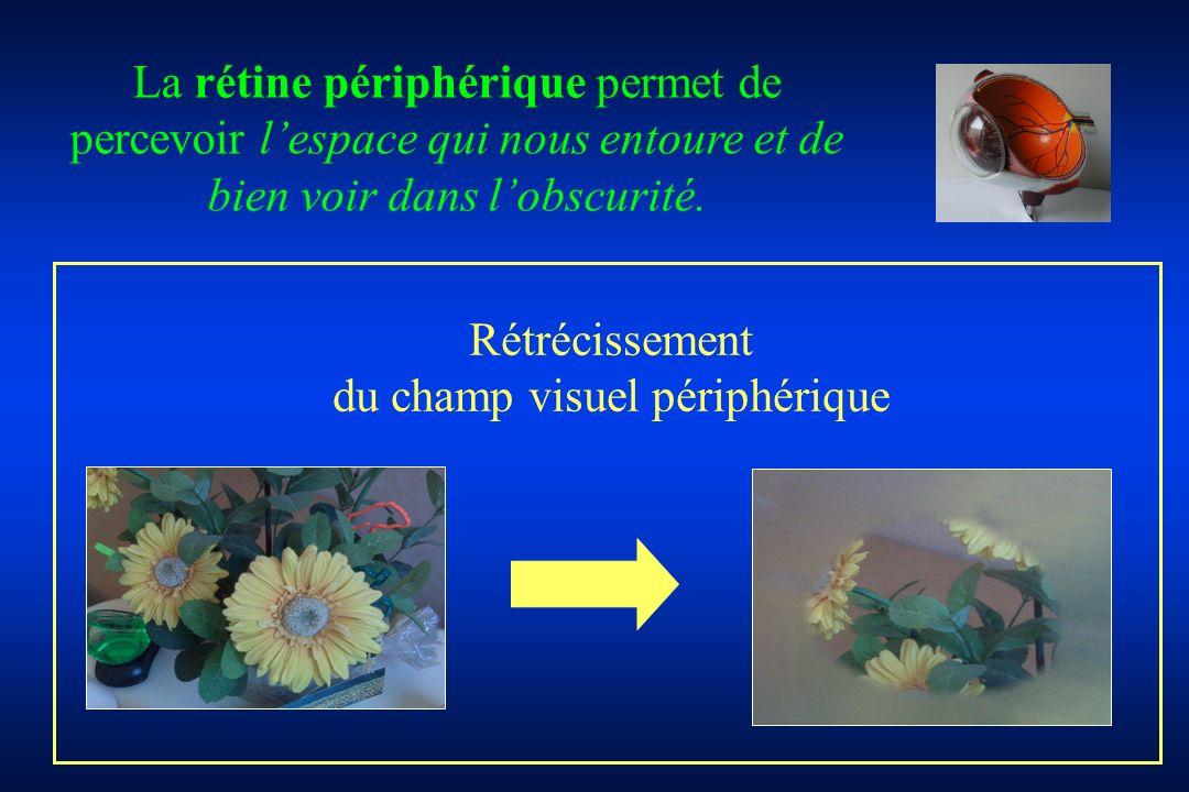 du champ visuel périphérique
