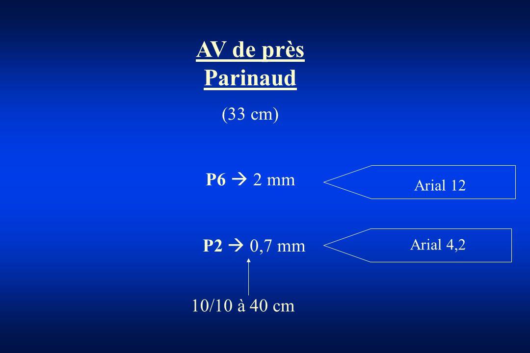 AV de près Parinaud (33 cm) P6  2 mm P2  0,7 mm 10/10 à 40 cm