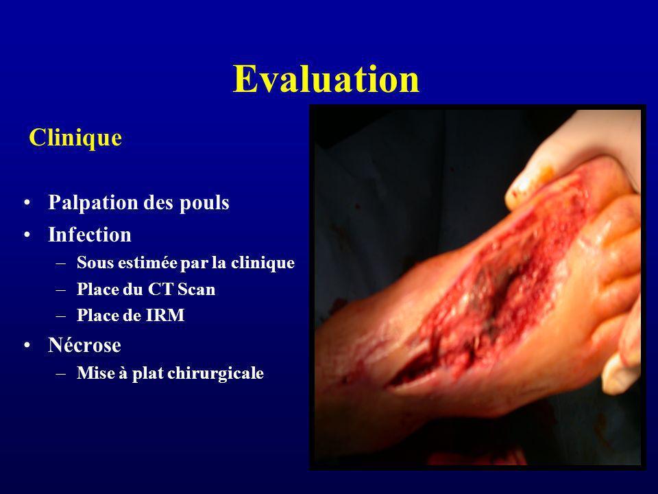 Evaluation Clinique Palpation des pouls Infection Nécrose