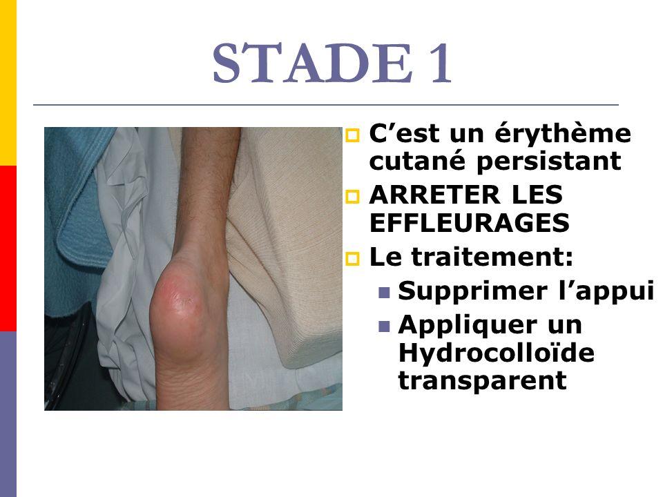 STADE 1 C'est un érythème cutané persistant ARRETER LES EFFLEURAGES
