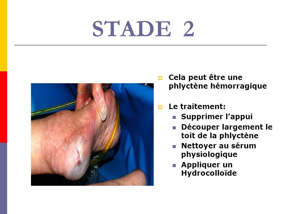 STADE 2 Cela peut être une phlyctène hémorragique Le traitement: