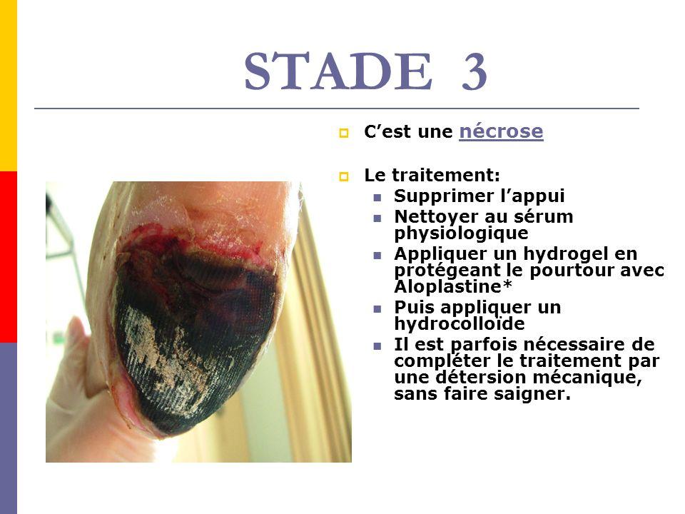 STADE 3 C'est une nécrose Le traitement: Supprimer l'appui