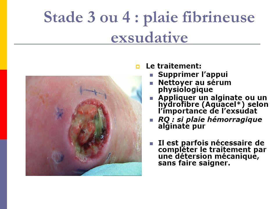 Stade 3 ou 4 : plaie fibrineuse exsudative