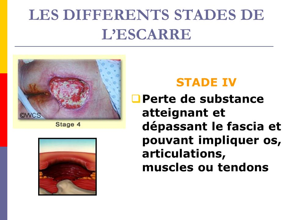LES DIFFERENTS STADES DE L'ESCARRE