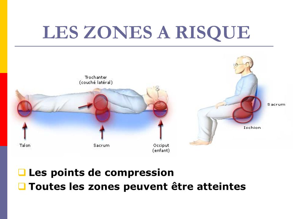 LES ZONES A RISQUE Les points de compression