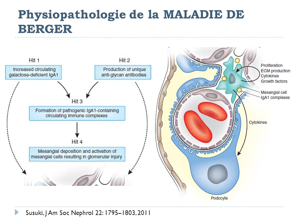 Physiopathologie de la MALADIE DE BERGER