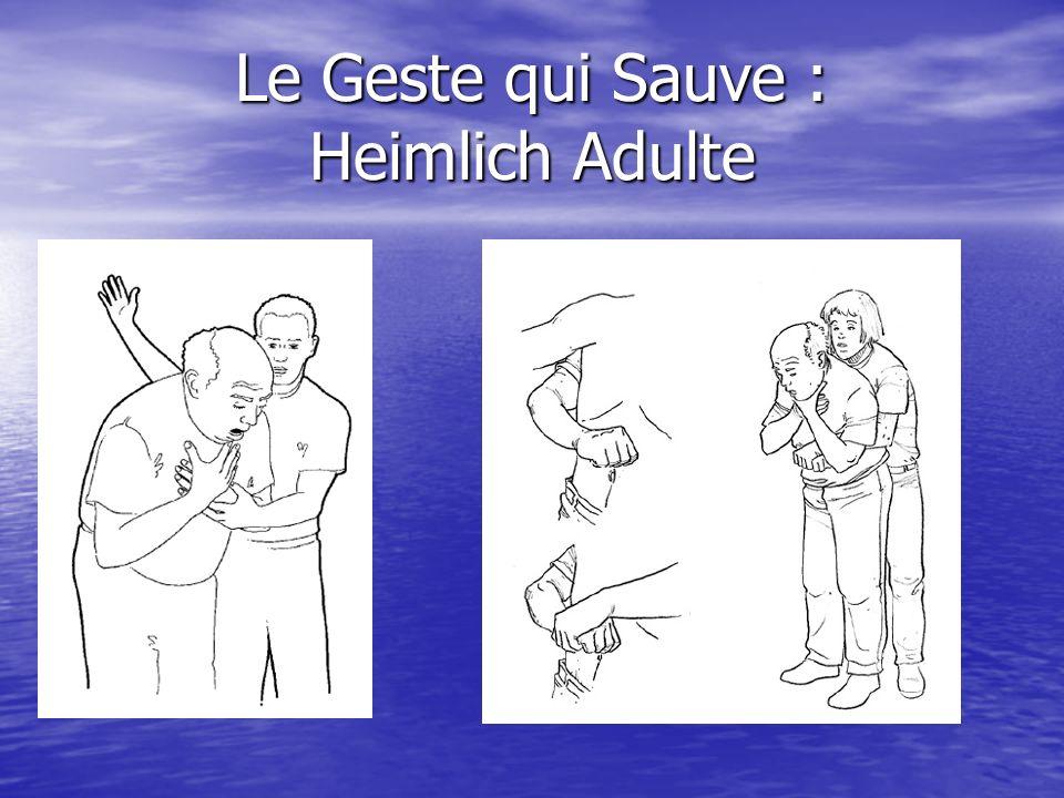 Le Geste qui Sauve : Heimlich Adulte