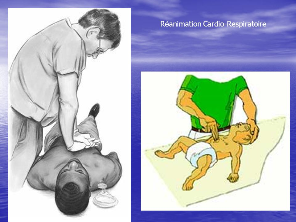 Réanimation Cardio-Respiratoire