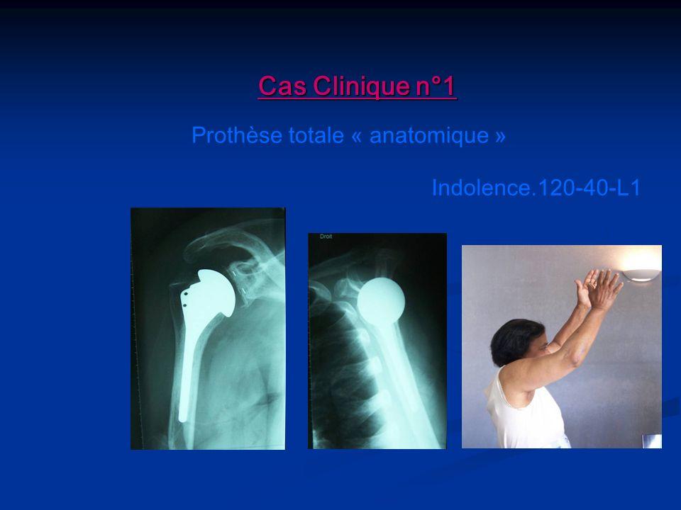 Prothèse totale « anatomique »