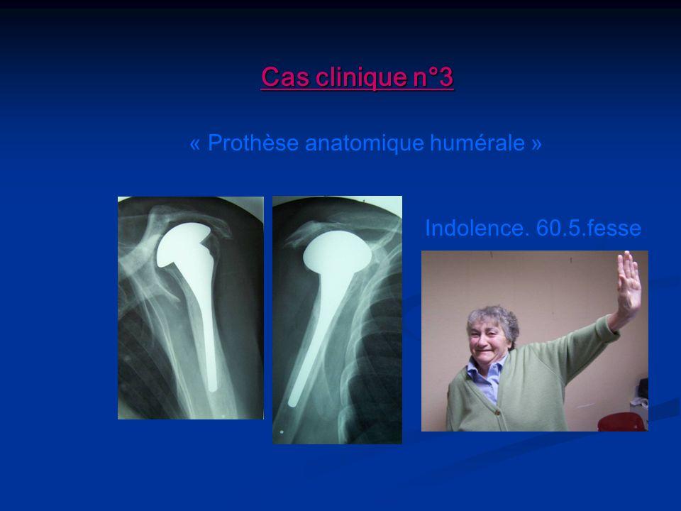 « Prothèse anatomique humérale »