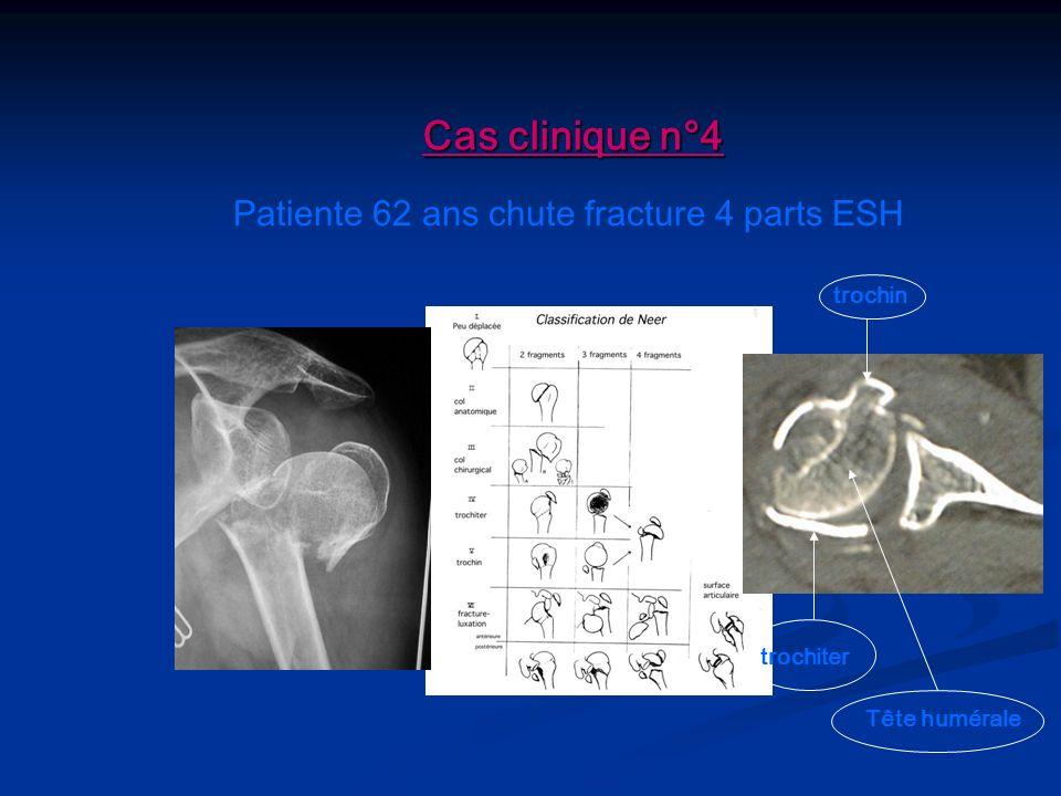 Patiente 62 ans chute fracture 4 parts ESH