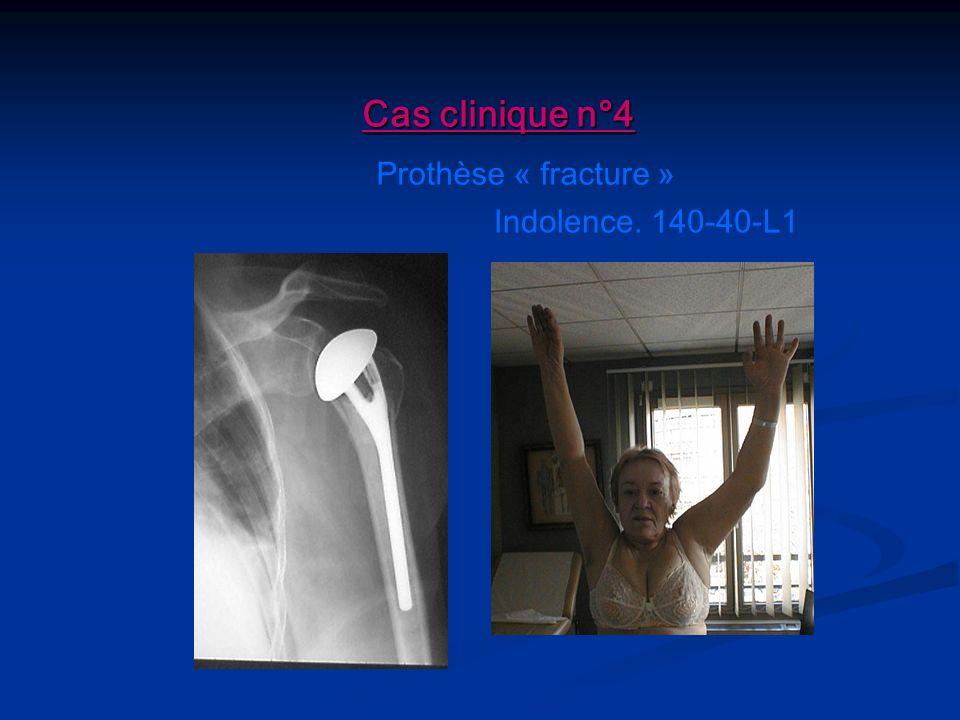 Cas clinique n°4 Prothèse « fracture » Indolence. 140-40-L1
