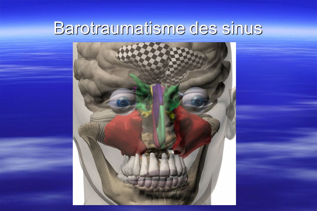 Barotraumatisme des sinus