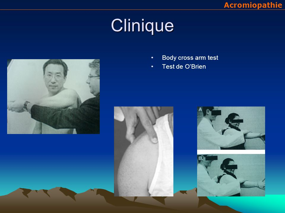 Clinique Acromiopathie Body cross arm test Test de O'Brien