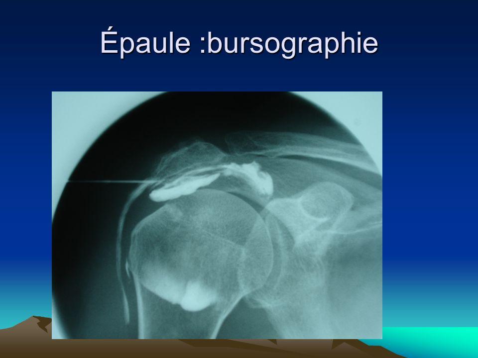 Épaule :bursographie