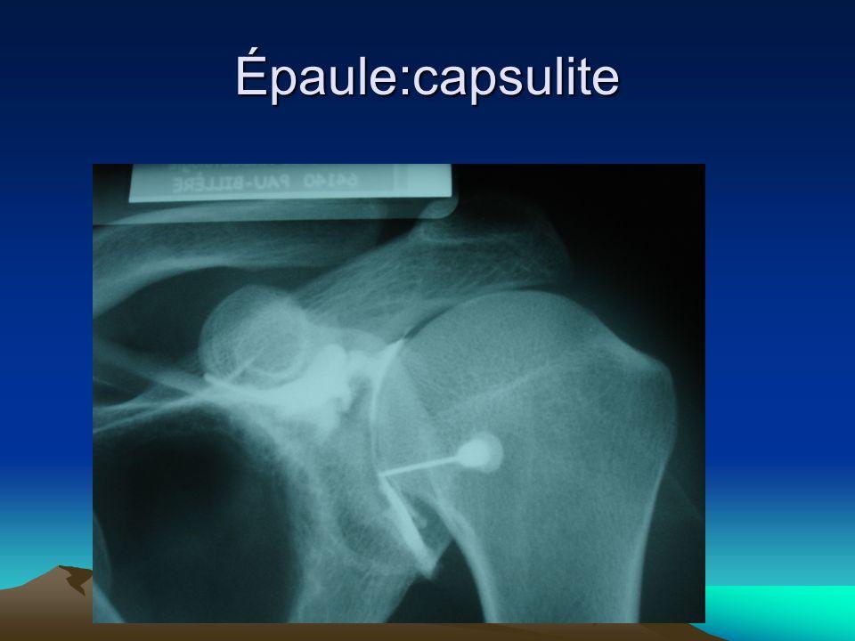 Épaule:capsulite