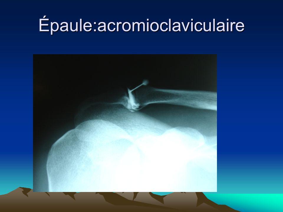 Épaule:acromioclaviculaire