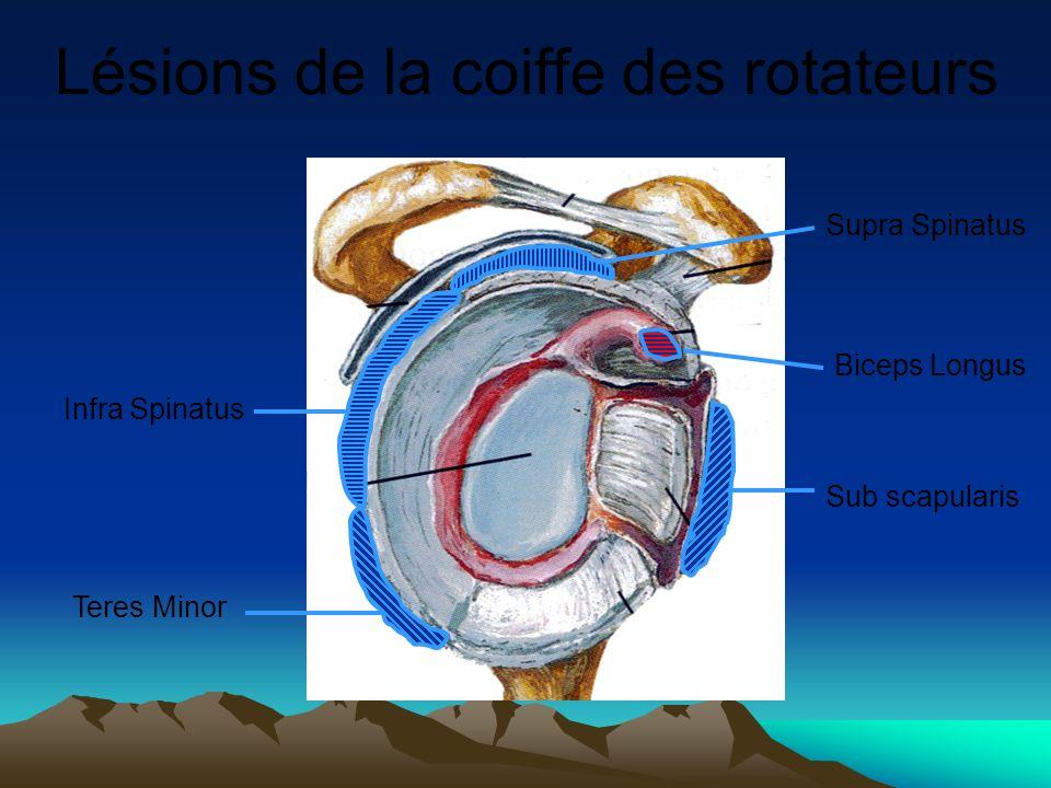Lésions de la coiffe des rotateurs