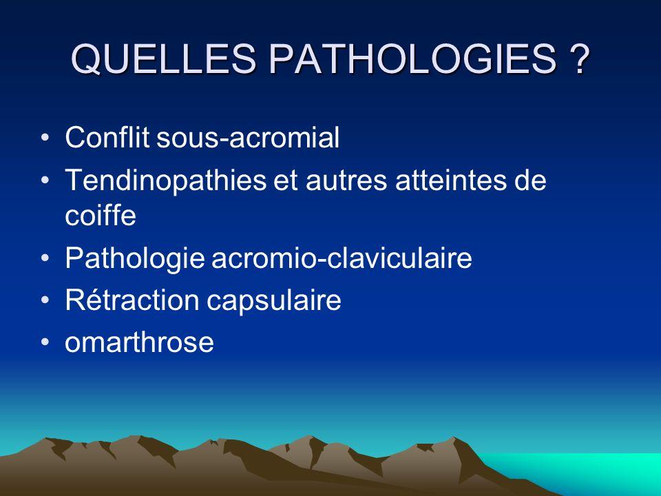QUELLES PATHOLOGIES Conflit sous-acromial