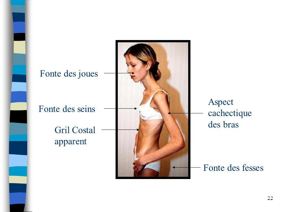 Fonte des joues Aspect cachectique des bras Fonte des seins Gril Costal apparent Fonte des fesses