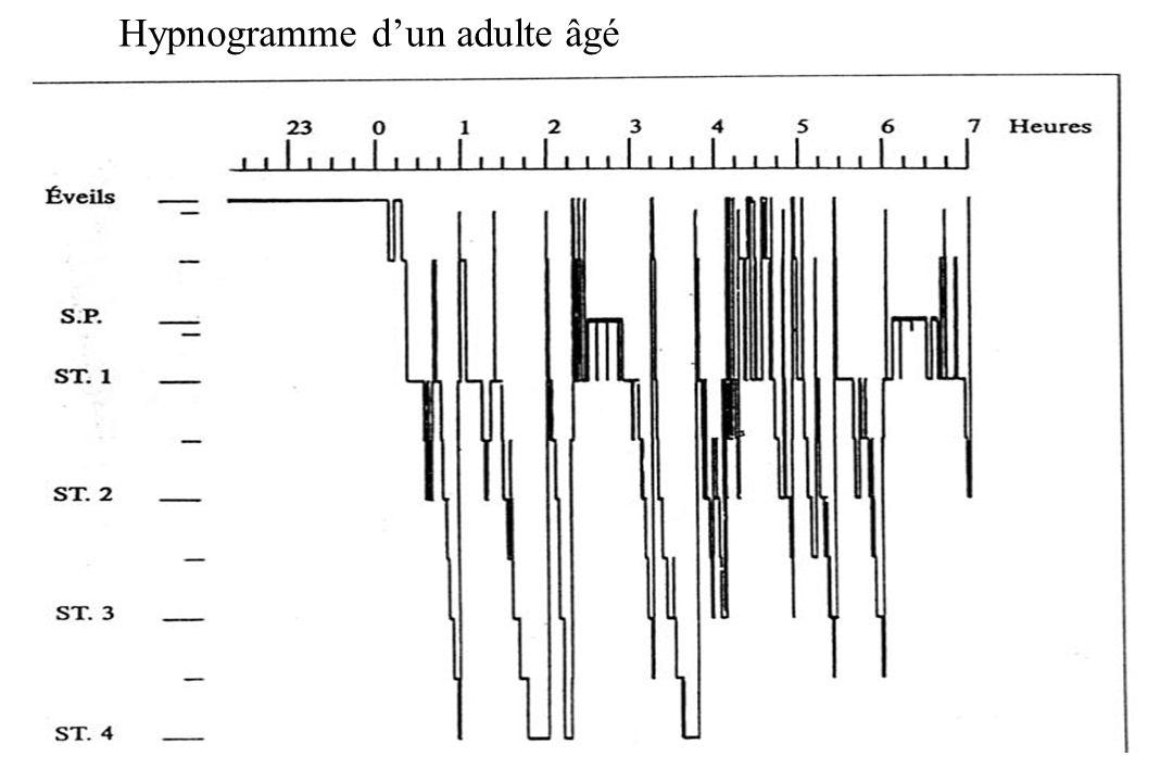 Hypnogramme d'un adulte âgé