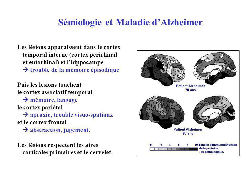 Sémiologie et Maladie d'Alzheimer