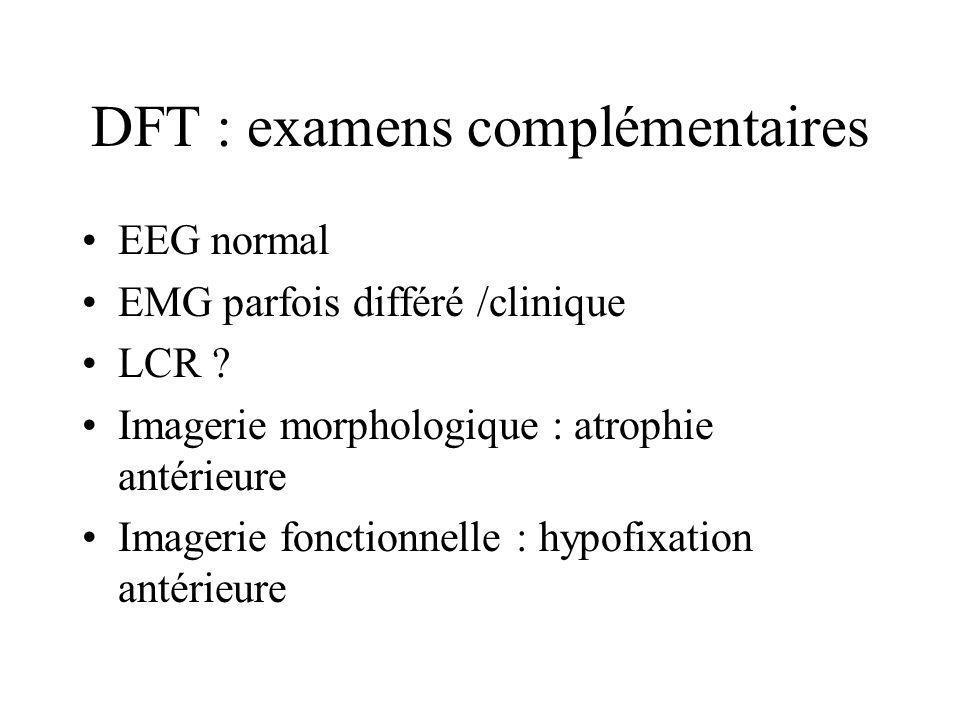 DFT : examens complémentaires