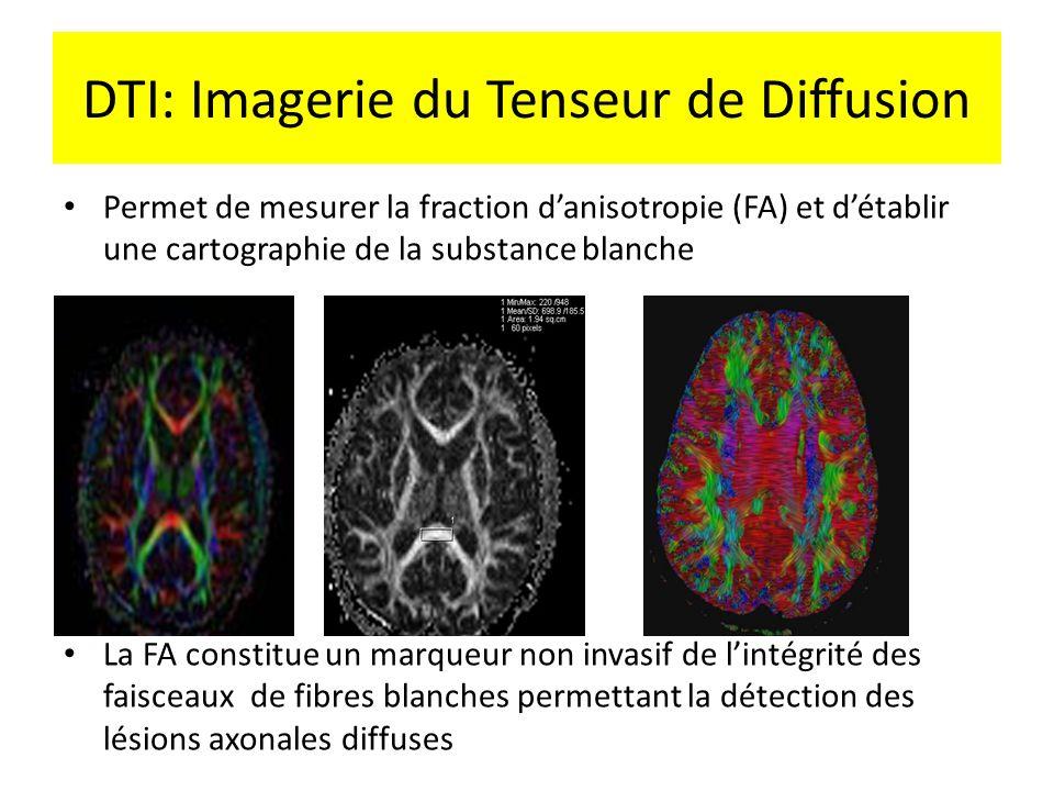 DTI: Imagerie du Tenseur de Diffusion