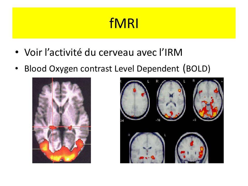 fMRI Voir l'activité du cerveau avec l'IRM