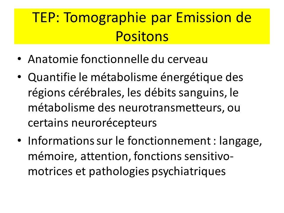 TEP: Tomographie par Emission de Positons