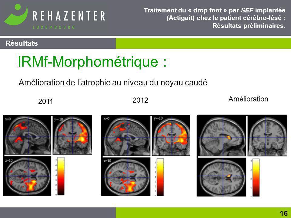 IRMf-Morphométrique :