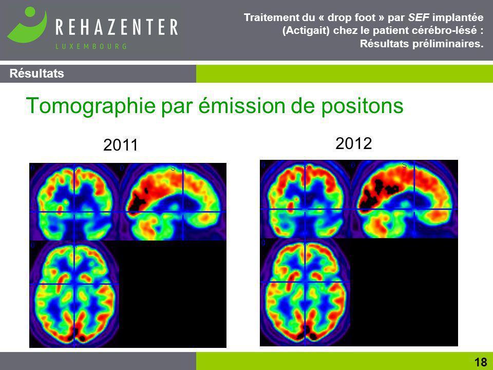 Tomographie par émission de positons