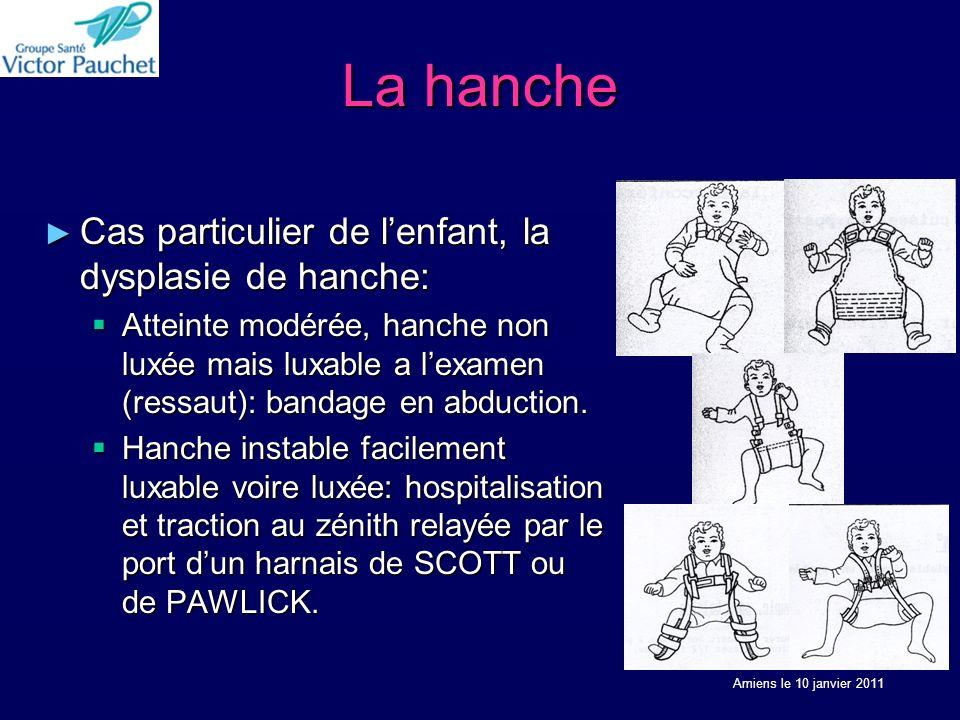 La hanche Cas particulier de l'enfant, la dysplasie de hanche:
