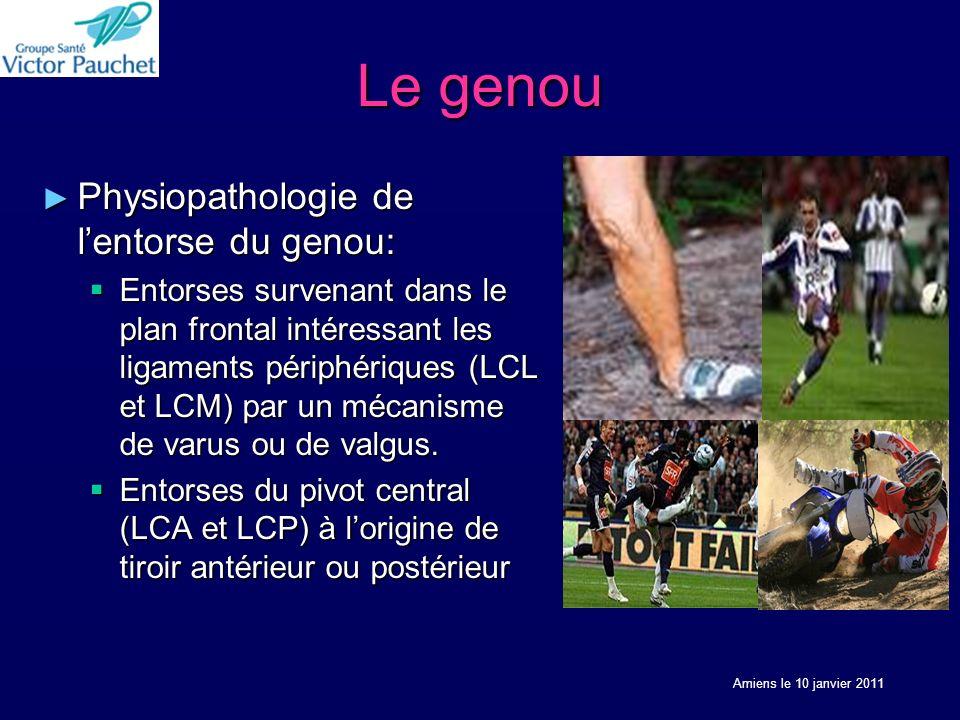 Le genou Physiopathologie de l'entorse du genou: