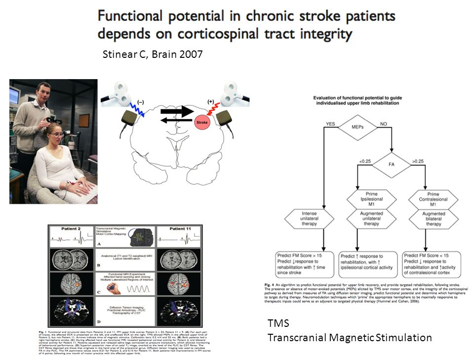 Stinear C, Brain 2007 TMS Transcranial Magnetic Stimulation