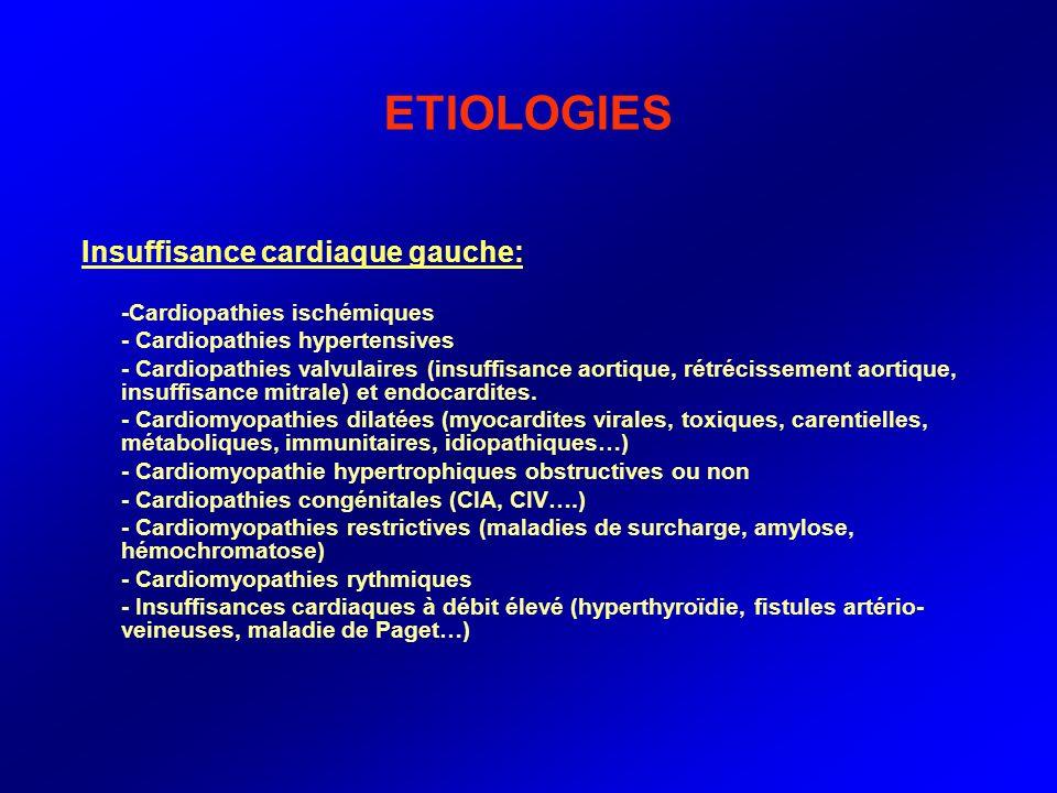 ETIOLOGIES Insuffisance cardiaque gauche: -Cardiopathies ischémiques