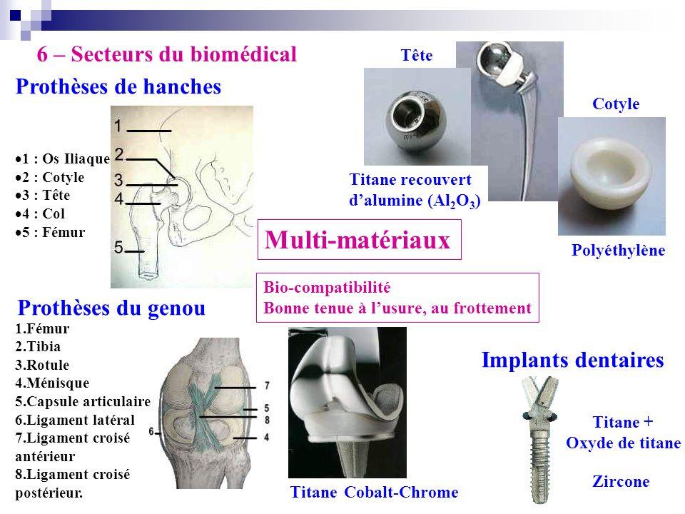 Multi-matériaux 6 – Secteurs du biomédical Prothèses de hanches