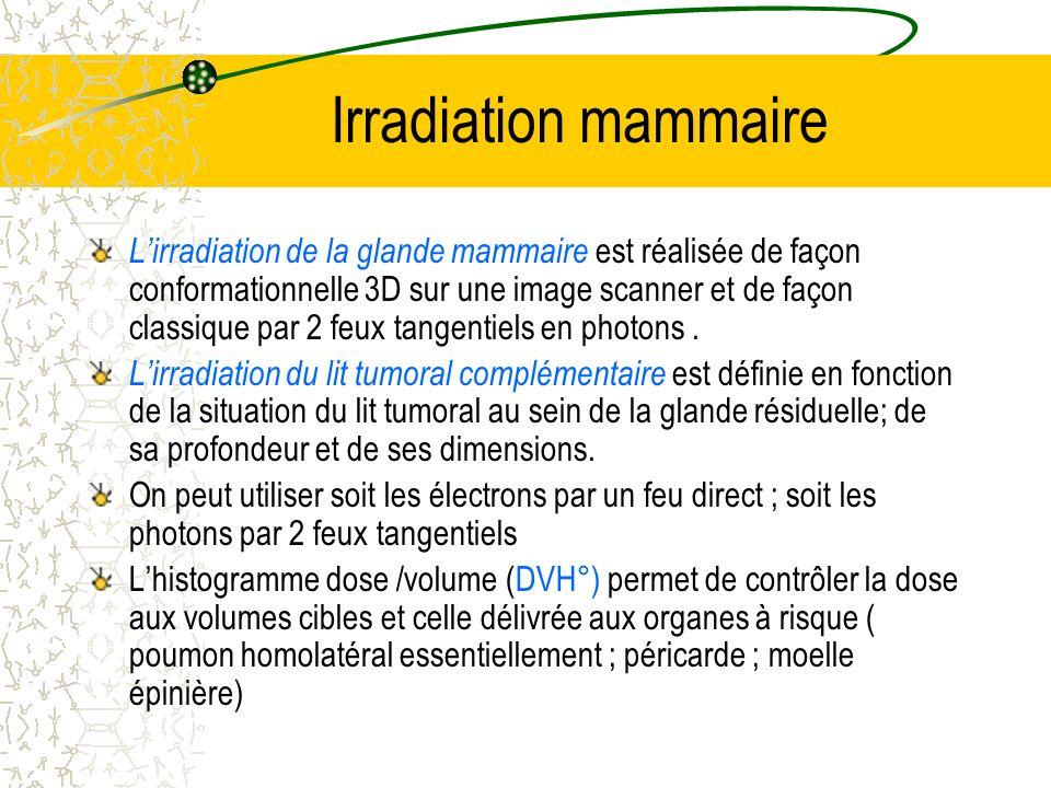 Irradiation mammaire