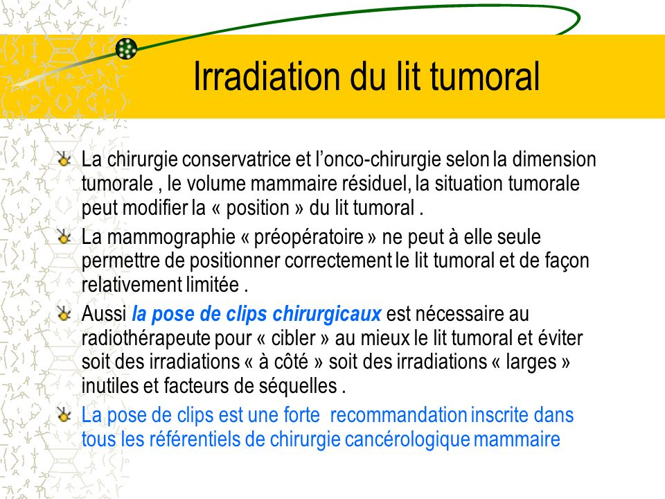 Irradiation du lit tumoral