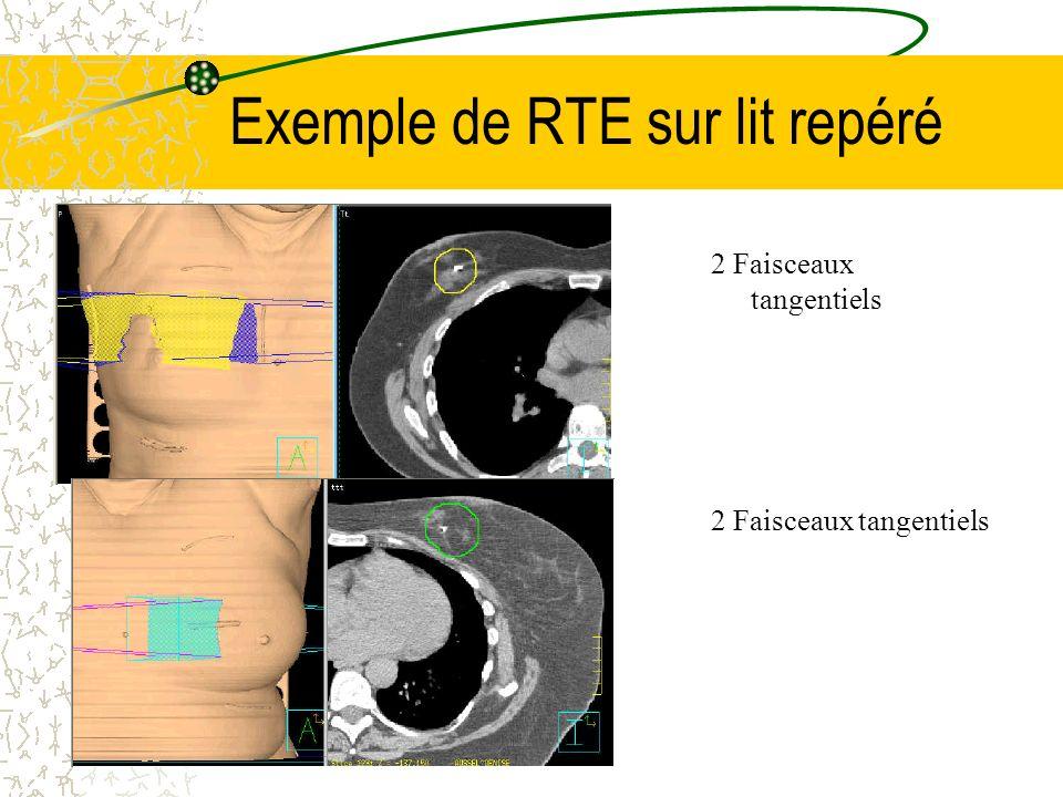 Exemple de RTE sur lit repéré