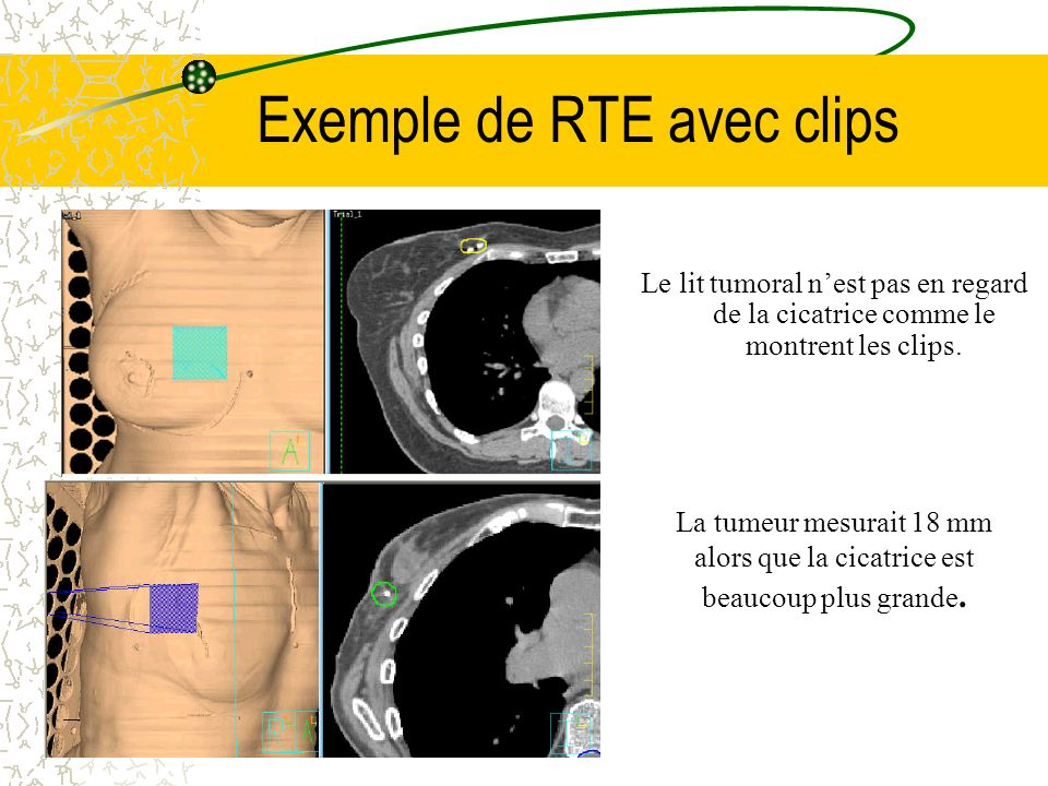 Exemple de RTE avec clips