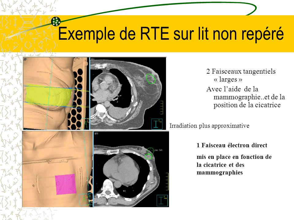 Exemple de RTE sur lit non repéré