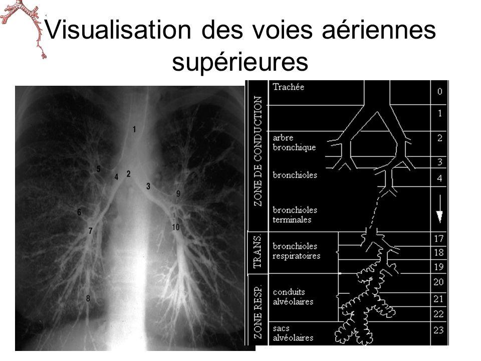Visualisation des voies aériennes supérieures
