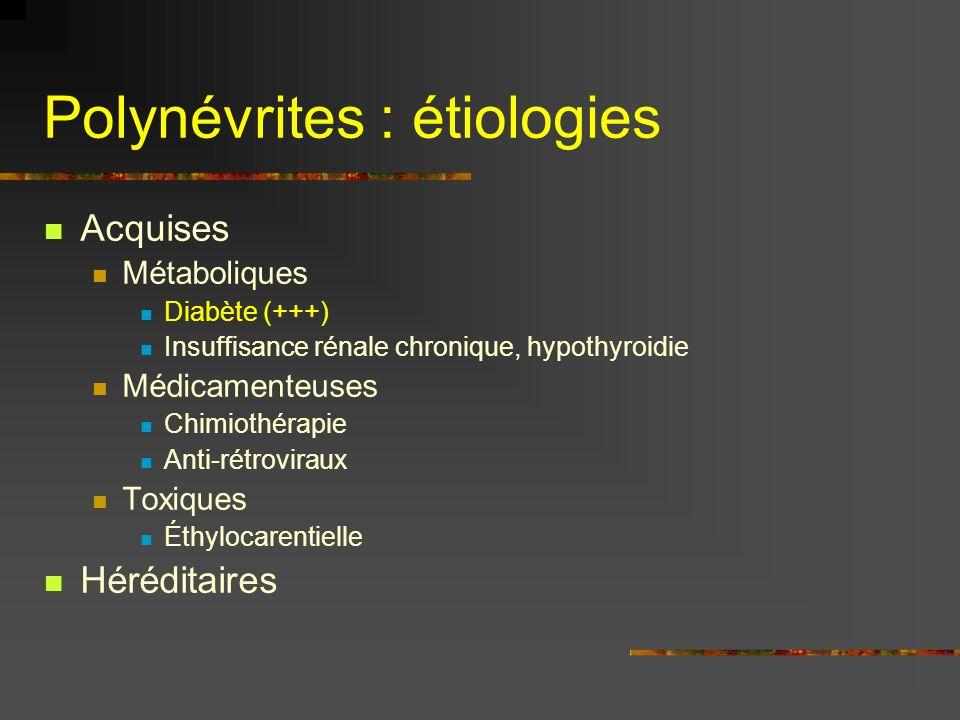 Polynévrites : étiologies