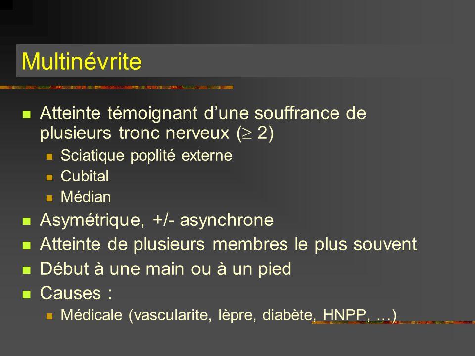 Multinévrite Atteinte témoignant d'une souffrance de plusieurs tronc nerveux ( 2) Sciatique poplité externe.